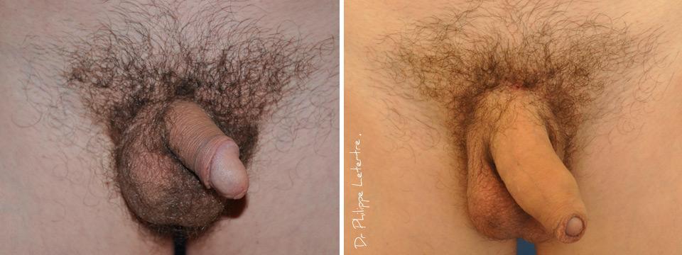 comment agrandir son penis 4